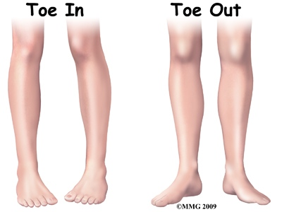 toronto_podiatrist__intoe_and_out_toe.jpg